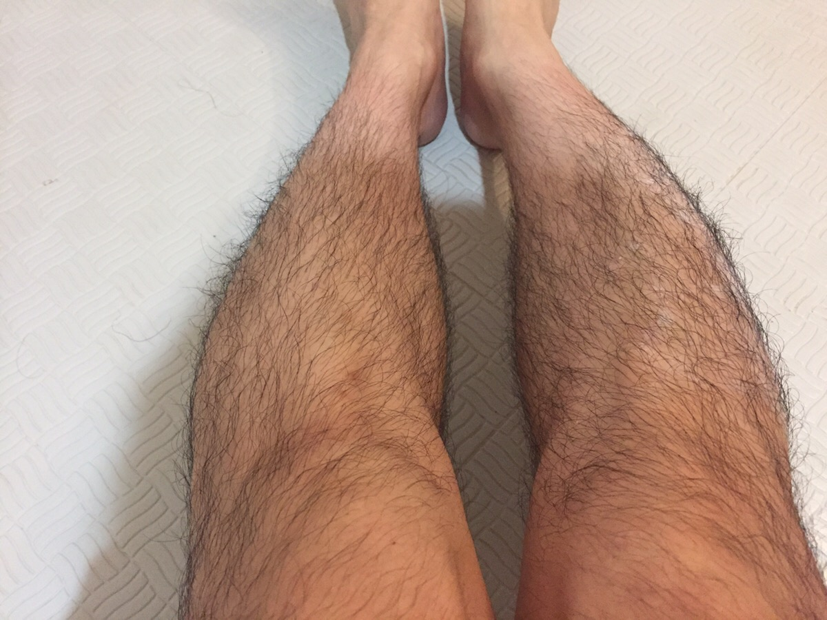 脚の様子(before)