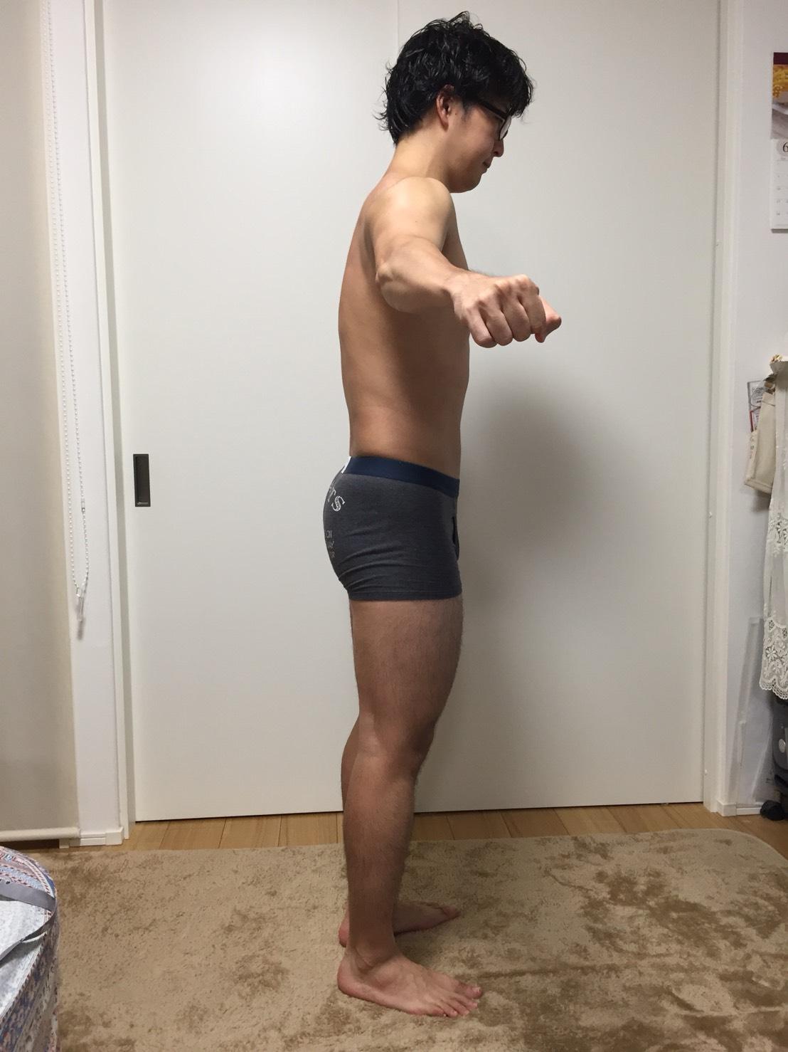 2018年6月24日時点の横からの様子。腕の角度が悪い写真。背中側に脂肪が確認できる。