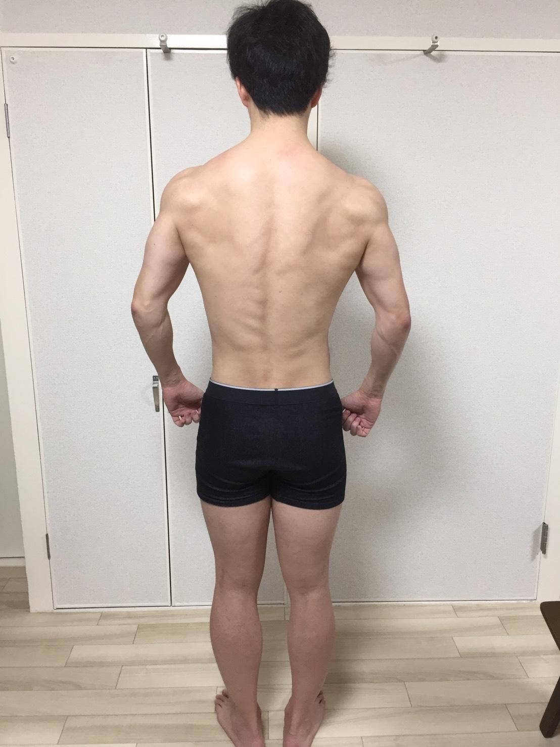 2019年3月26日の身体の様子(背面)